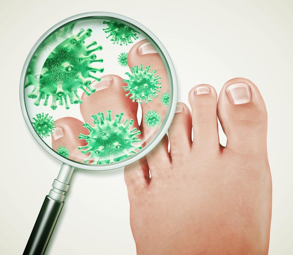 laser-fungal-toenails-Scarborough-maine-podiatrist