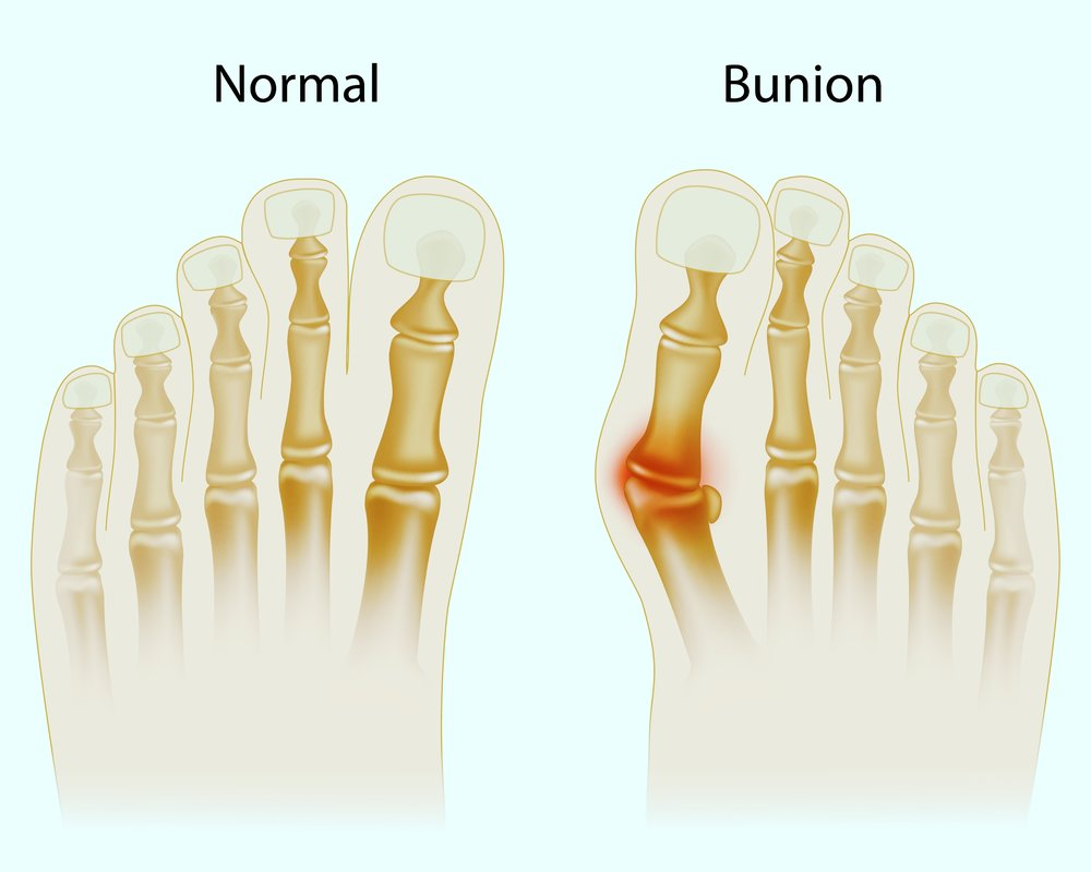 bunion-doctor-Scarborough-Maine-Michele-Kurlanski