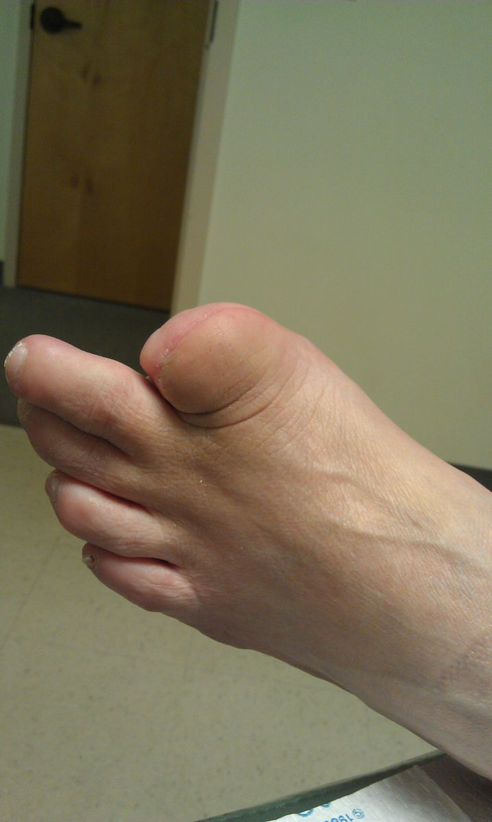 first toe amputation.jpg
