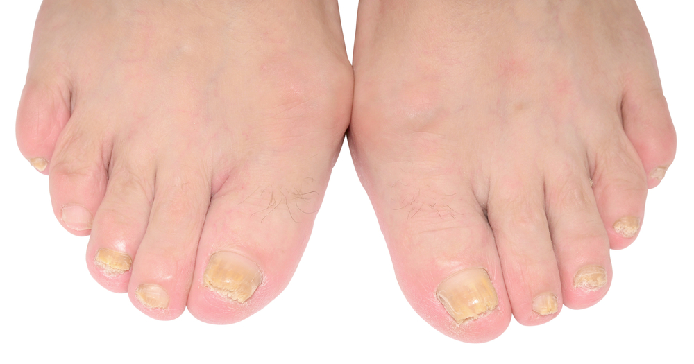 laser fungal toenail podiatrist scarborough maine