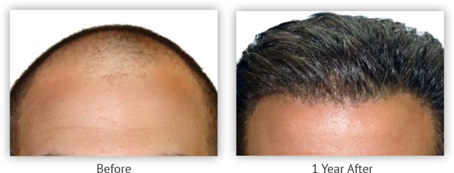 시술 전                                 1 년 후   Photos courtesy of the New Horizons Center for Cosmetic Surgery, Gregory A. Turowski, MD *Date on file