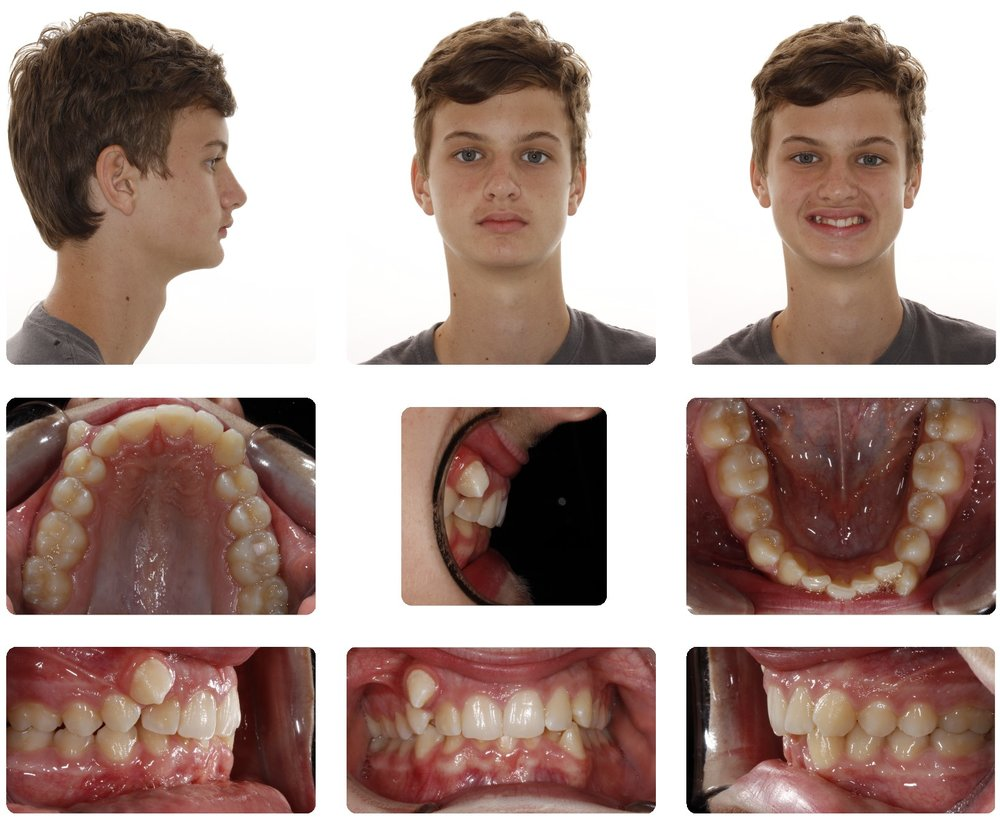 Extractions with Braces Initial.jpg