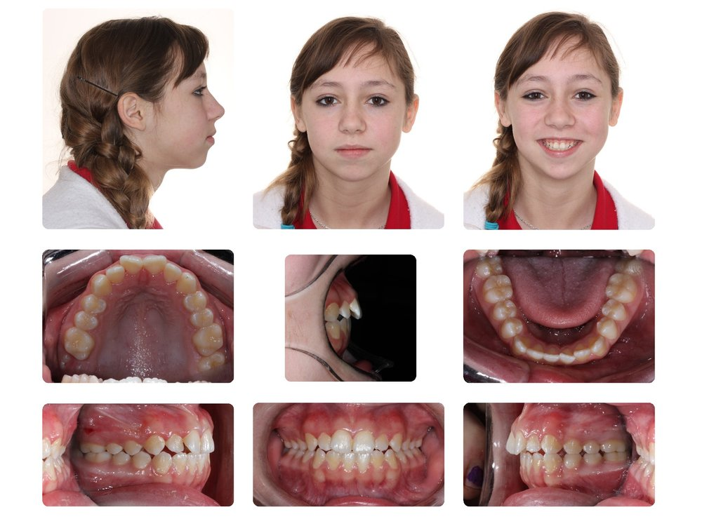 Initial TMJ replacement & braces.jpg