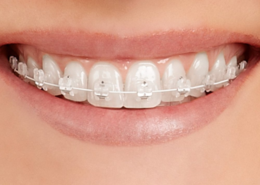 Empower Clear Braces