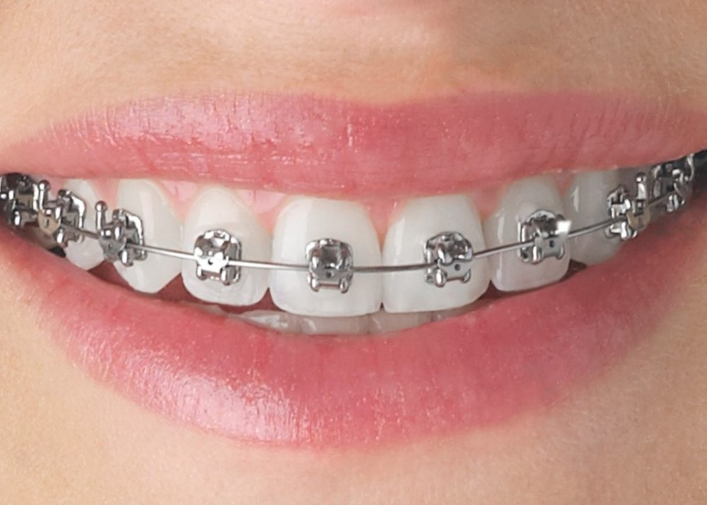 Empower Metal Braces
