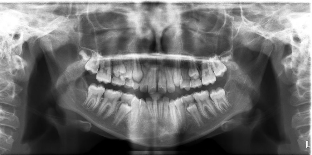 Initial Panoramic X-ray.jpg