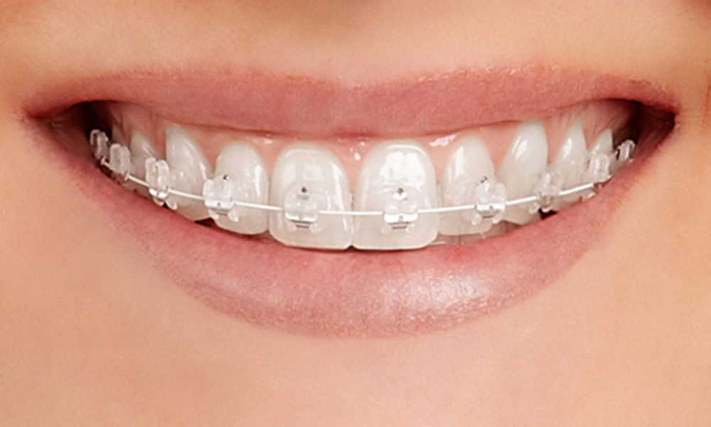 Empower Clear Braces.jpg