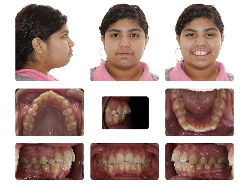 Amarillo Braces.jpg