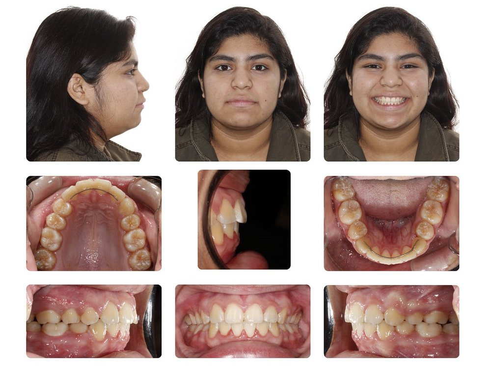 Amarillo Orthodontist.jpg