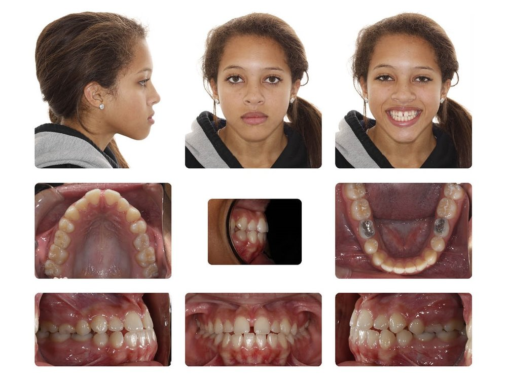 Diastema & Missing teeth.jpg