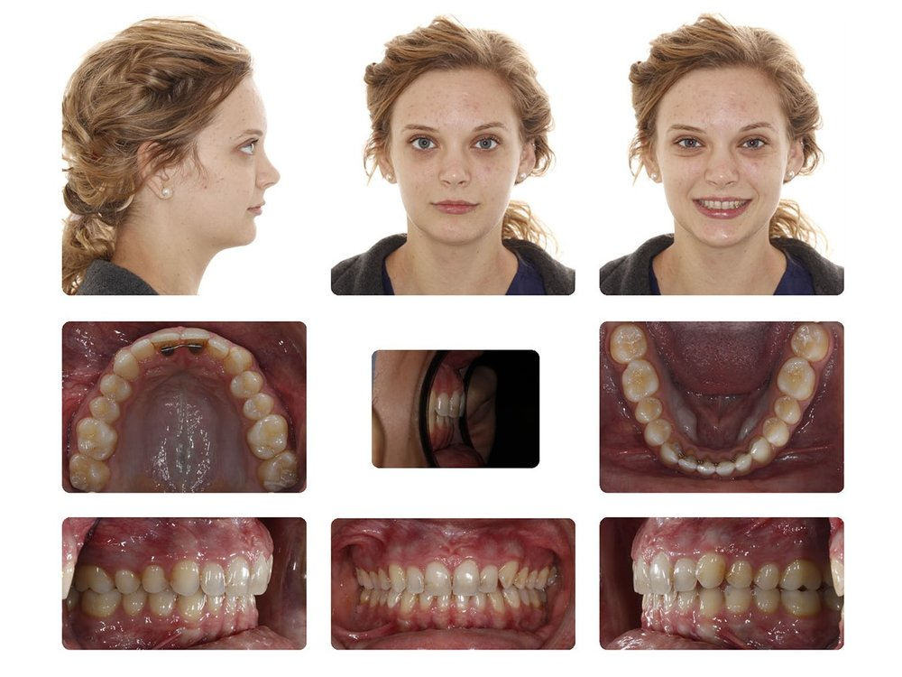 Distalization - Braces & Mini-Screws - Initial.jpg