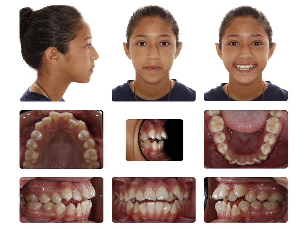 Initial Open Bite Extractions & Braces.jpg