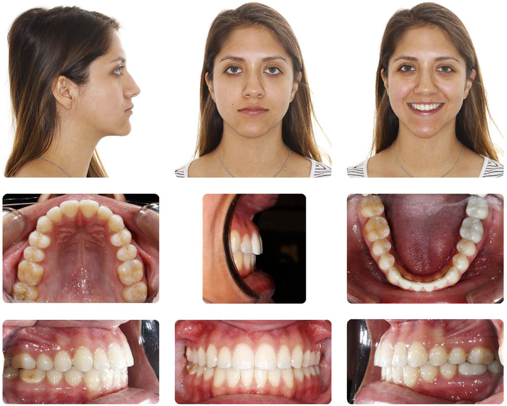 Non Extraction Amarillo Braces.jpg