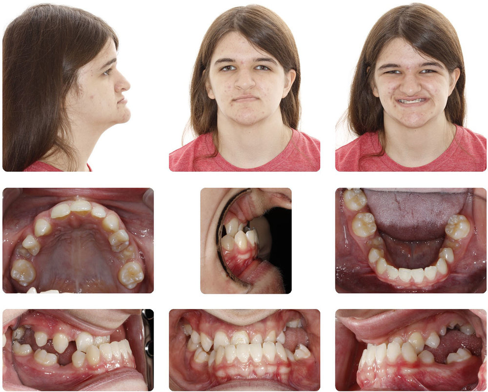 Amarillo Orthodontist - Double Jaw Surgery 1.jpg