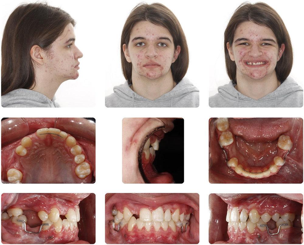 Amarillo Orthodontist - Double Jaw Surgery 2.jpg
