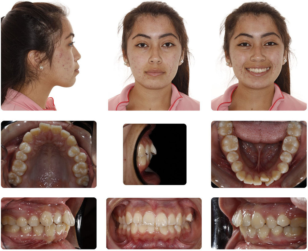 Amarillo Orthodontist - Miniscrew Retraction.jpg