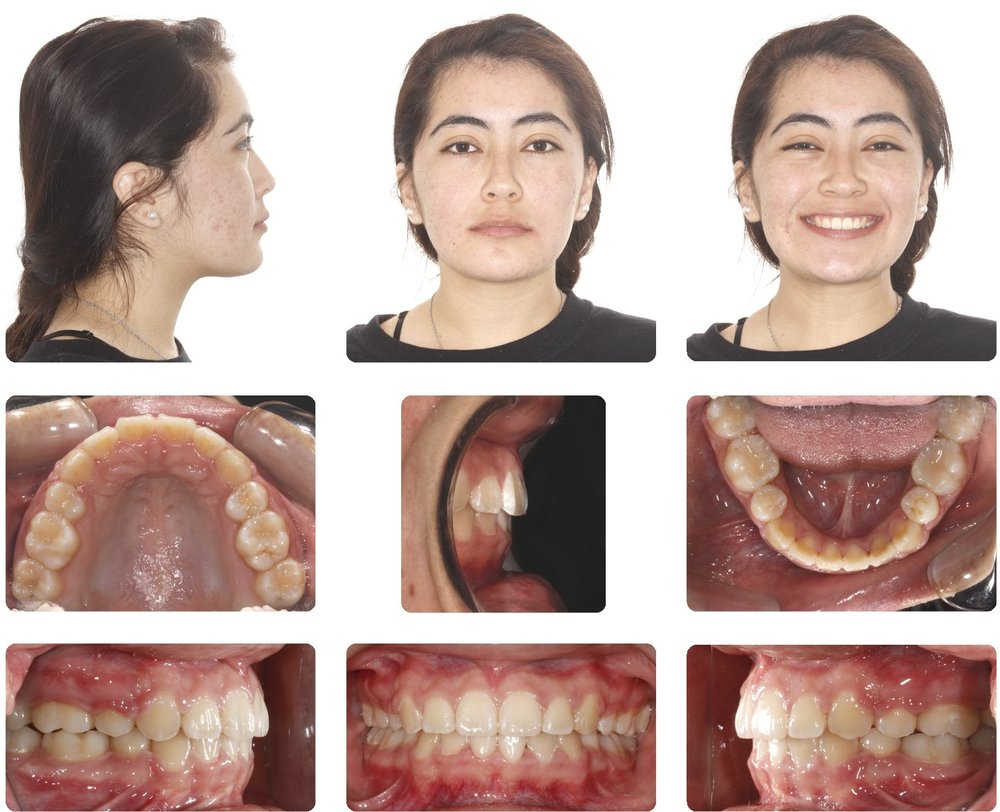 Amarillo Orthodontist - Miniscrew Retraction 2.jpg