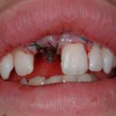 implantat2.jpg