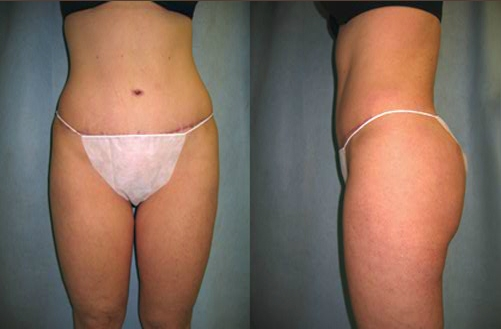#2 after Abdominoplasty Tummy Tuck.jpg
