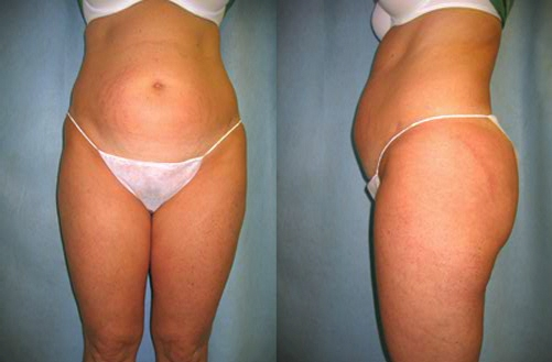#2 before Abdominoplasty Tummy Tuck.jpg