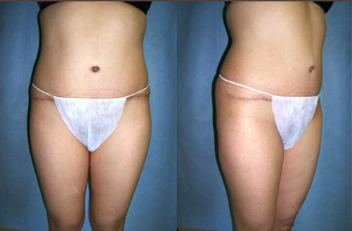 #3 after Abdominoplasty Tummy Tuck.jpg