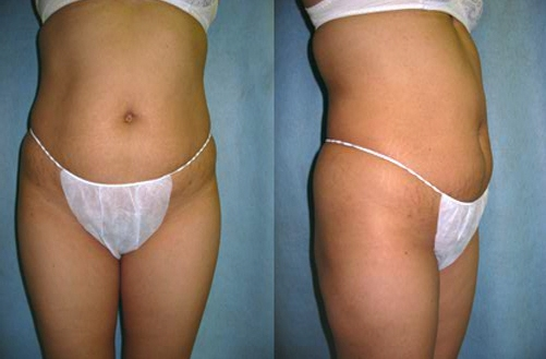 #3 before Abdominoplasty Tummy Tuck.jpg
