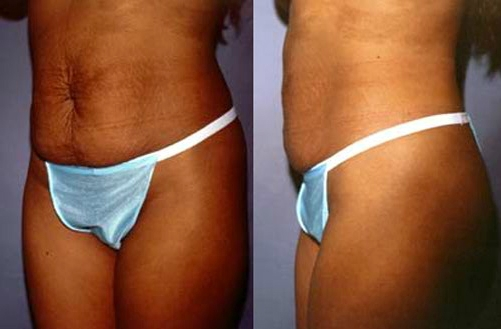 #4 after Abdominoplasty Tummy Tuck.jpg