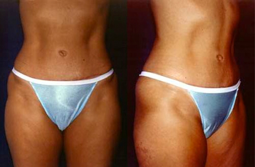 5-Abdominoplasty-Tummy-Tuck-After.jpg
