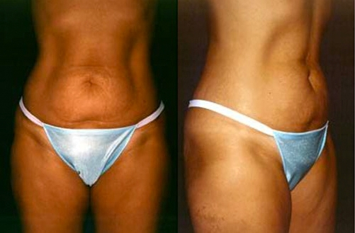 5-Abdominoplasty-Tummy-Tuck-Before.jpg
