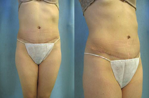 6-Abdominoplasty-Tummy-Tuck-After.jpg