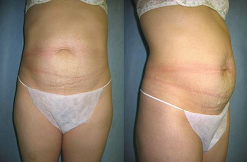 6-Abdominoplasty-Tummy-Tuck-Before.jpg