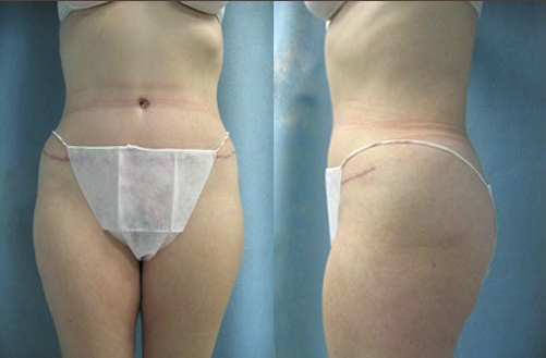 7-Abdominoplasty-Tummy-Tuck-After.jpg