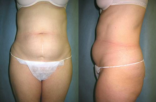 7-Abdominoplasty-Tummy-Tuck-Before.jpg