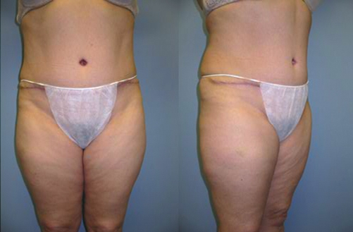 8-Abdominoplasty-Tummy-Tuck-After.jpg