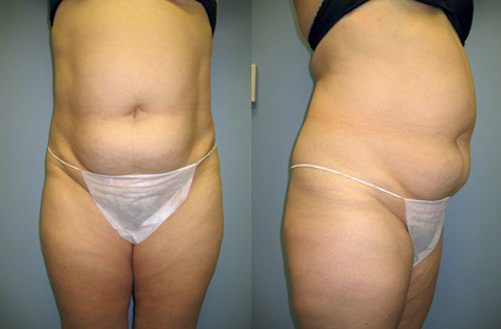 8-Abdominoplasty-Tummy-Tuck-Before.jpg