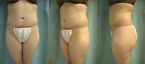 9-Abdominoplasty-Tummy-Tuck-After.jpg