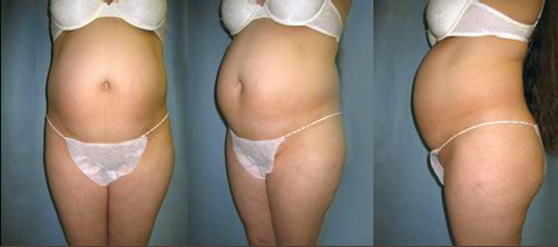 9-Abdominoplasty-Tummy-Tuck-Before.jpg