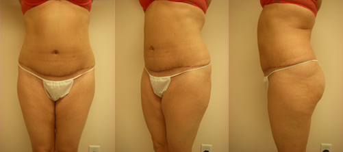 10-Abdominoplasty-Tummy-Tuck-After.jpg