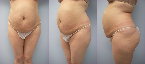 10-Abdominoplasty-Tummy-Tuck-Before.jpg
