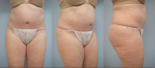 11-Abdominoplasty-Tummy-Tuck-After.jpg