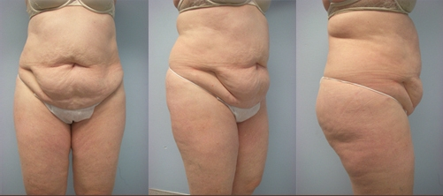 11-Abdominoplasty-Tummy-Tuck-Before.jpg