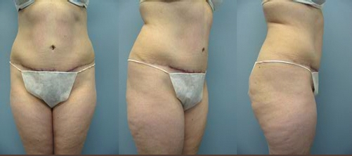 12-Abdominoplasty-Tummy-Tuck-After.jpg