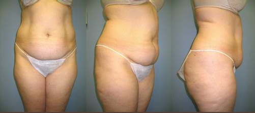 12-Abdominoplasty-Tummy-Tuck-Before.jpg