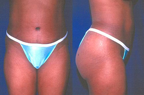 13-Abdominoplasty-Tummy-Tuck-After.jpg