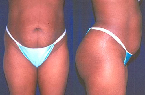 13-Abdominoplasty-Tummy-Tuck-Before.jpg