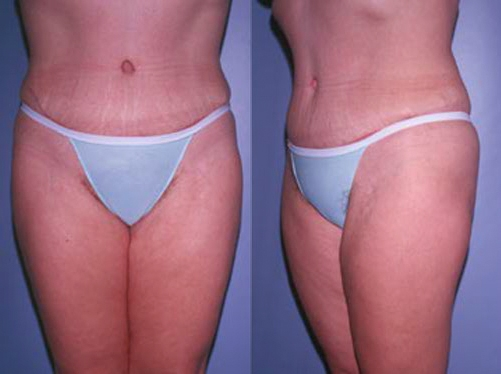 14-Abdominoplasty-Tummy-Tuck-After.jpg