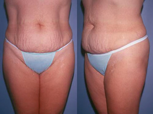 14-Abdominoplasty-Tummy-Tuck-Before.jpg