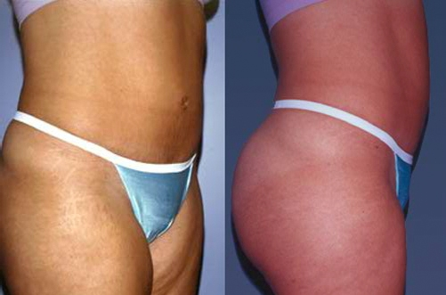15-Abdominoplasty-Tummy-Tuck-After.jpg
