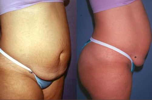 15-Abdominoplasty-Tummy-Tuck-Before.jpg
