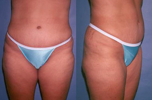 16-Abdominoplasty-Tummy-Tuck-After.jpg